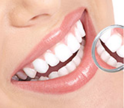 """Whitening is a Safe and Effective Way to get That """"Hollywood Smile"""""""