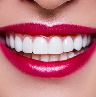 Veneers may Offer a Less Invasive Way to Transform Your Smile
