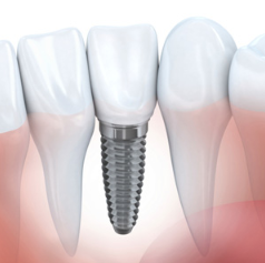 Determining the Pros and Cons of Dental Implants in Madison Heights, MI