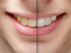 Teeth Discoloration: Causes and Treatment – Madison Heights, MI